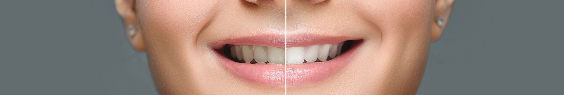 Teeth Whitening at Alpha Plus Dental Center