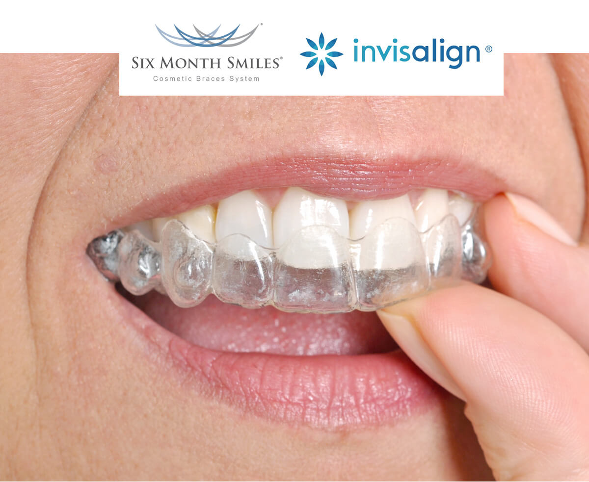 Invisalign and six month smile