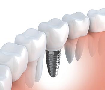 Innovative Brookline practice discusses the benefits of zirconium implants