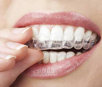 Braces for Adults in Brookline area