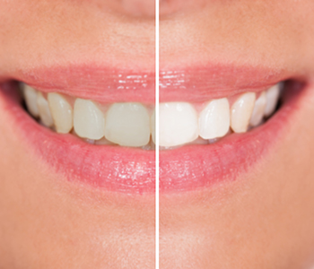 Brookline area dentist describes the Zoom teeth whitening procedure