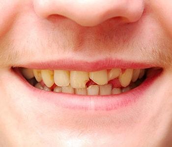 Emergency Dental Services MA