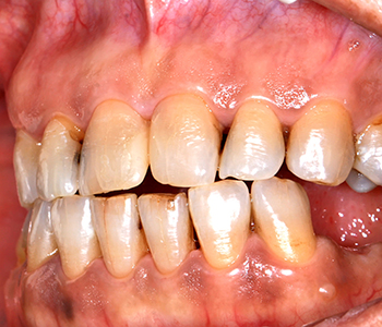 Dentist in Brookline recommends prompt care for symptoms of gum infection